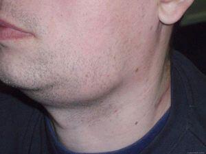У мужчины шишка на шее