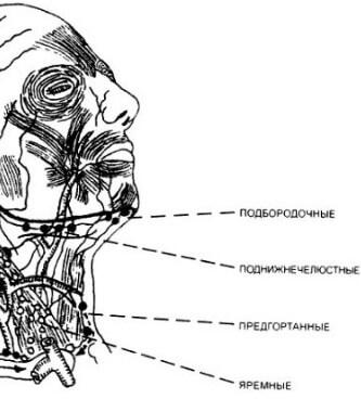 Схематическое изображение расположения