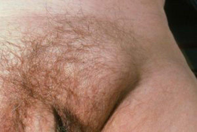 shaved-groin-area-photos-black-gag-porn