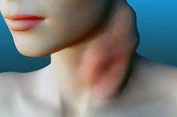 Покраснение и появление боли при движении