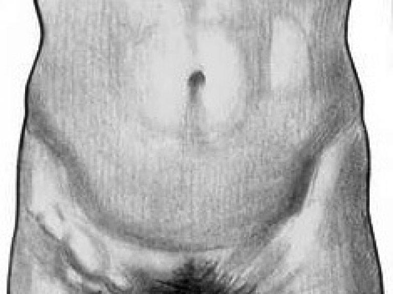 сифилитическая лимфаденопатия