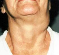 Злокачественное поражение у женщины