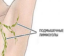 Болезнь затрагивает руки с двух сторон