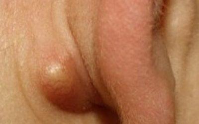 Подмышечные лимфоузлы. Причины увеличения,способы контроля