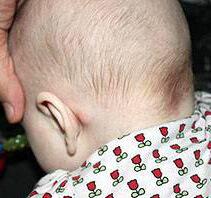 Повернутая голова младенца