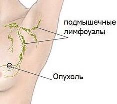 Организм с растущей опухолью в груди