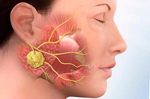 Разрастающаяся лимфоидная ткань в области лица