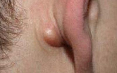 Что делать при воспалении лимфоузлов в паху