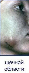 Набухание щеки