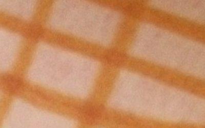 Лимфоузлы под мышками - фото, расположение и заболевания