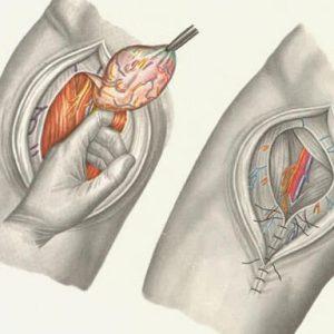 Хирург делает надрез и зашивает