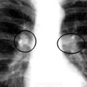 Снимок рентгенограммы