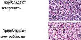 Микроскопическое исследование с целью подтверждения диагноза