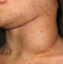 Раздуло шею с одной стороны