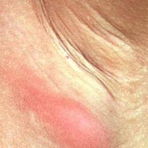 Покраснение как главный признак инфекции