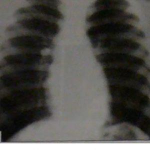Измененные частицы в легких