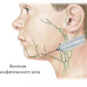 Прокалывание с целью диагностирования болезней